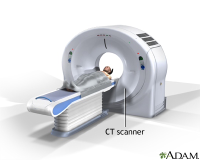 CT scan/ CTスキャン